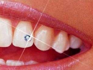 Цены на эстетическую стоматологию