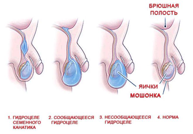 kak-uvelichit-kolichestvo-spermi-v-moshonke
